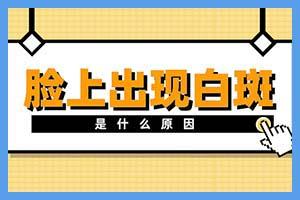 河南治疗白斑郑州西京真实好吗